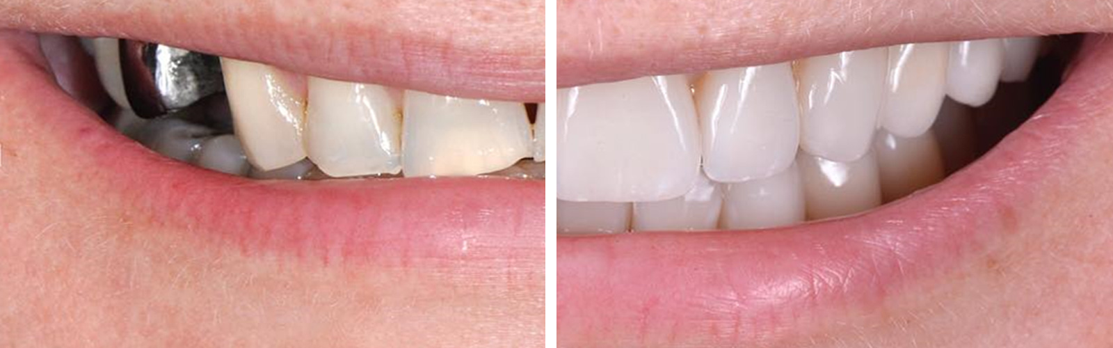 A repaired smile, before and after. The photo is an actual case made by an LACC Dental Technology graduate.